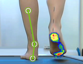 Efecto de las plantillas en la trayectoria del centro de presión y en las articulaciones durante la carrera