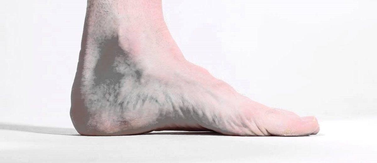 La influencia de los ejercicios de fortalecimiento del pie en la postura del pie y en los patrones de movimiento en corredores de larga distancia
