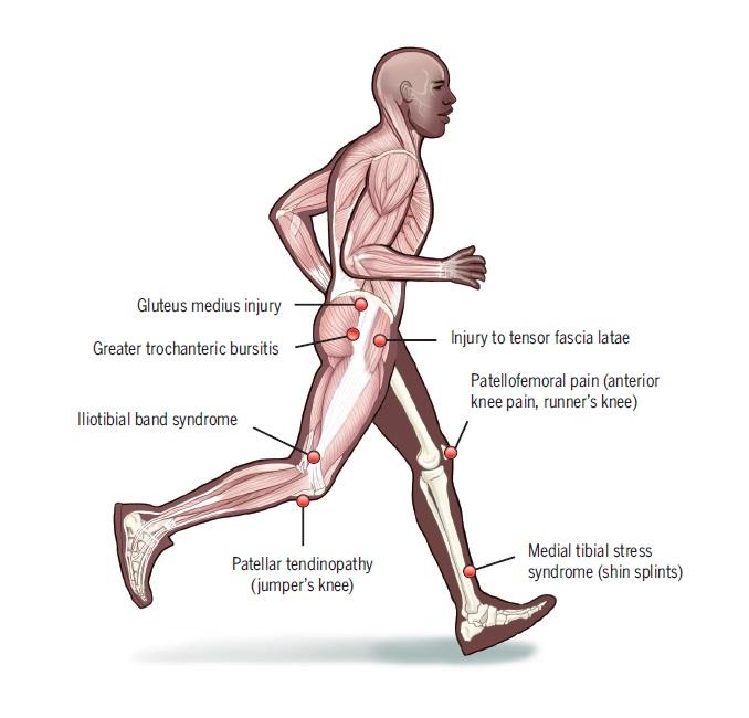 Progresión excesiva en la distancia de carrera semanal y riesgo de lesiones relacionadas con la carrera: una asociación que varía según el tipo de lesión