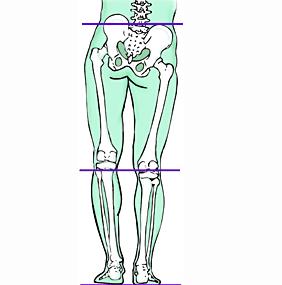 Discrepancia de longitud de la pierna