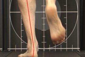Pronación del pie