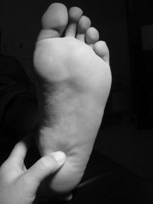 Un índice de masa corporal más alto se asocia con fasciopatía plantar / 'fascitis plantar': revisión sistemática y metaanálisis de varios factores de riesgo clínicos y de imagen