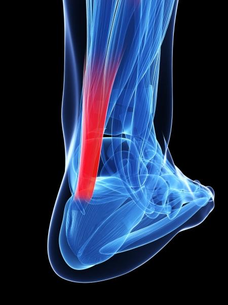 Terminología para trastornos relacionados con el tendón de Aquiles